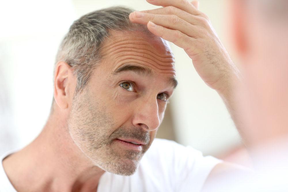 wypadanie włosów kraków, leczenie wypadania włosów krakow, dr cyj kraków, dr wolfinger Clinic, właosy kraków, trycholog Kraków