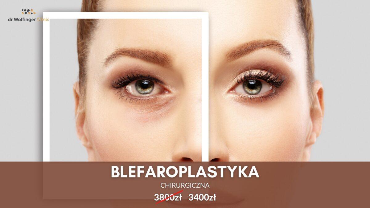 Blefaroplastyka – plastyka powiek